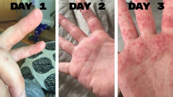 các biểu hiện bệnh tay chân miệng voh.com.vn