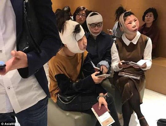 3 phụ nữ Trung Quốc không được lên máy bay do phẫu thuật thẩm mỹ