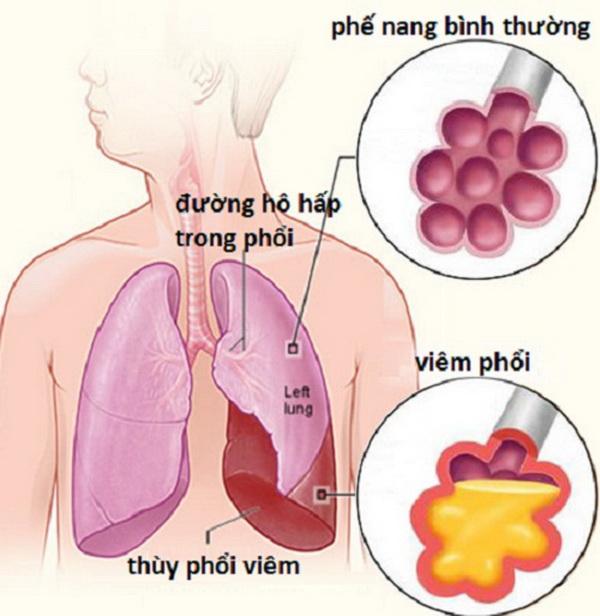viêm phế quản voh.com.vn