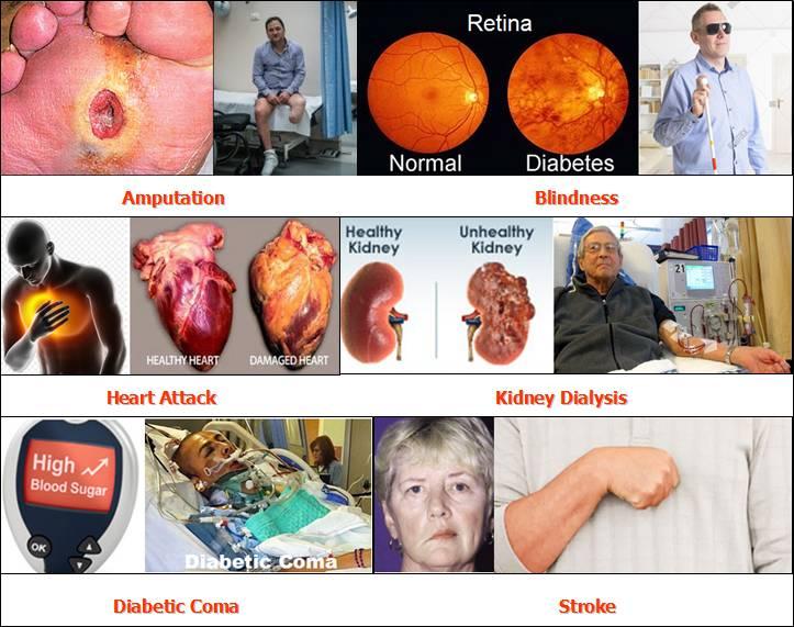 Biến chứng của bệnh tiểu đường