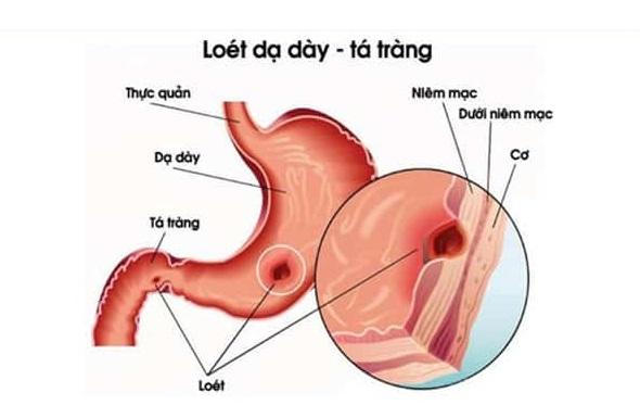 Bệnh viêm loét dạ dày tá tràng, viêm loét dạ dày tá tràng, nguyên nhân viêm loét dạ dày tá tràng