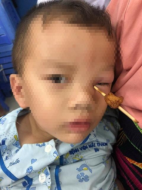 bệnh viện Mắt TPHCM, que cá viên chiên, mù mắt