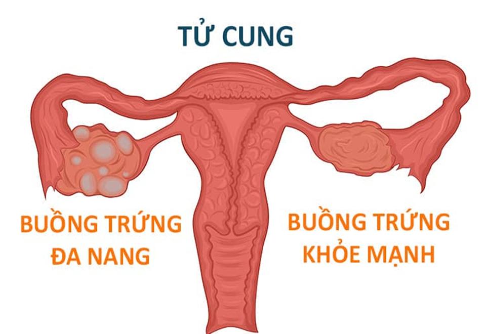 benh-da-nang-buong-trung-co-mang-thai-duoc-khong-voh
